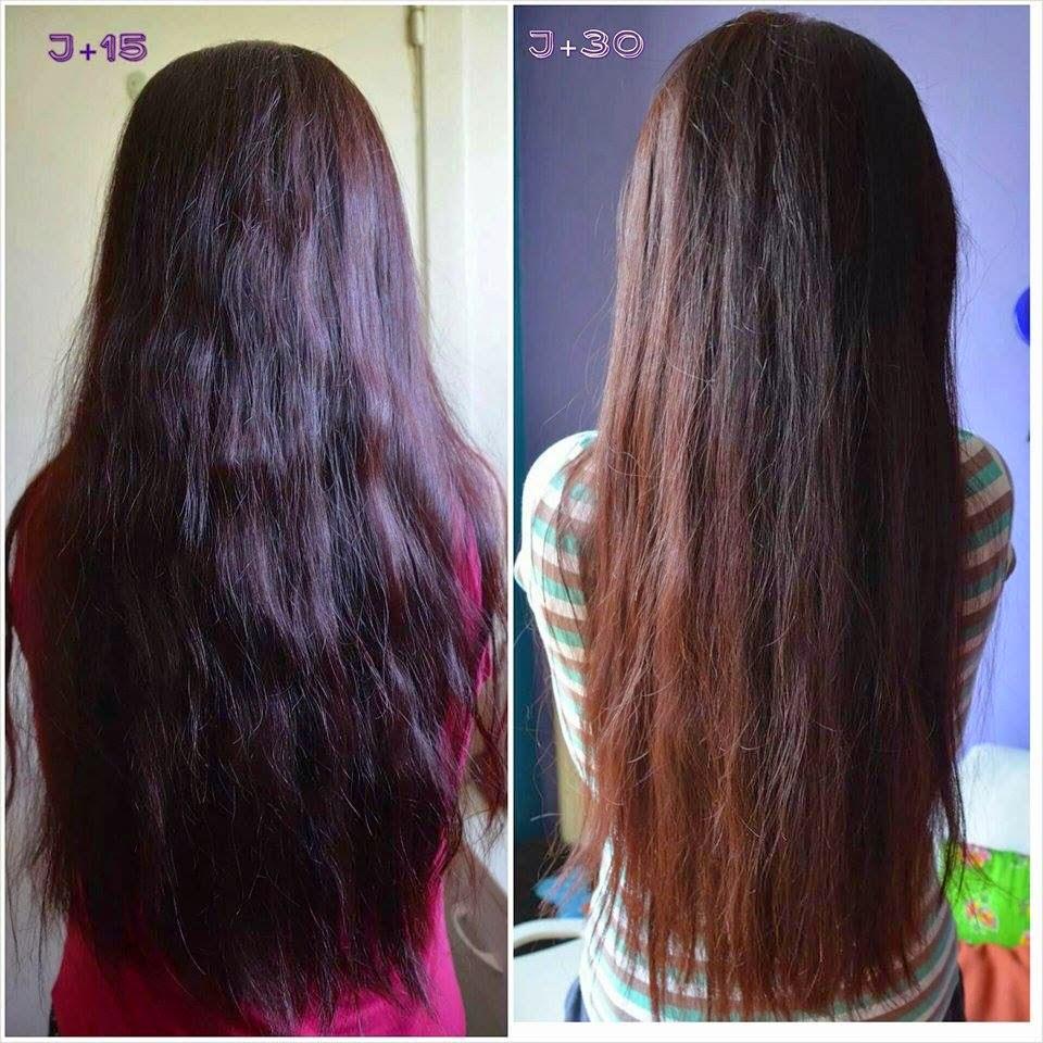 Quelles vitamines accepter pour les cheveux de la peau les rappels