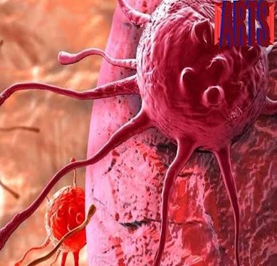 manfaat daun sirsak untuk mengobati penyakit kanker