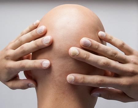pérdida de cabello en todo el cuerpo por alopecia universal