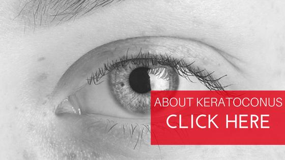 Best Keratoconus Treatment in Delhi