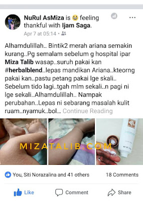 HERBAL BLEND, LOSYEN TANPA PARABEN, LOSYEN BEBAS PARABEN, HERBAL BLEND, LOSYEN UNTUK ECZEMA, RAWAT RUAM, HILANGKAN PARUT  herbal blend shaklee testimoni harga herbal blend shaklee herbal blend shaklee untuk bayi herbal blend shaklee untuk jerawat herbal blend shaklee untuk eczema herbal blend shaklee untuk chicken pox kebaikan herbal blend herbal blend shaklee ingredients, HERBAL BLEND KRIM AJAIB