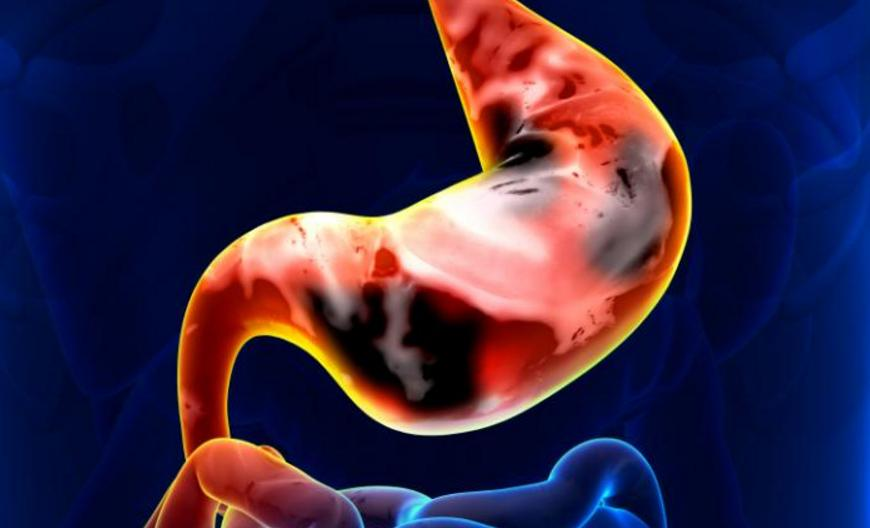 How Common is Stomach Cancer in Young Adults