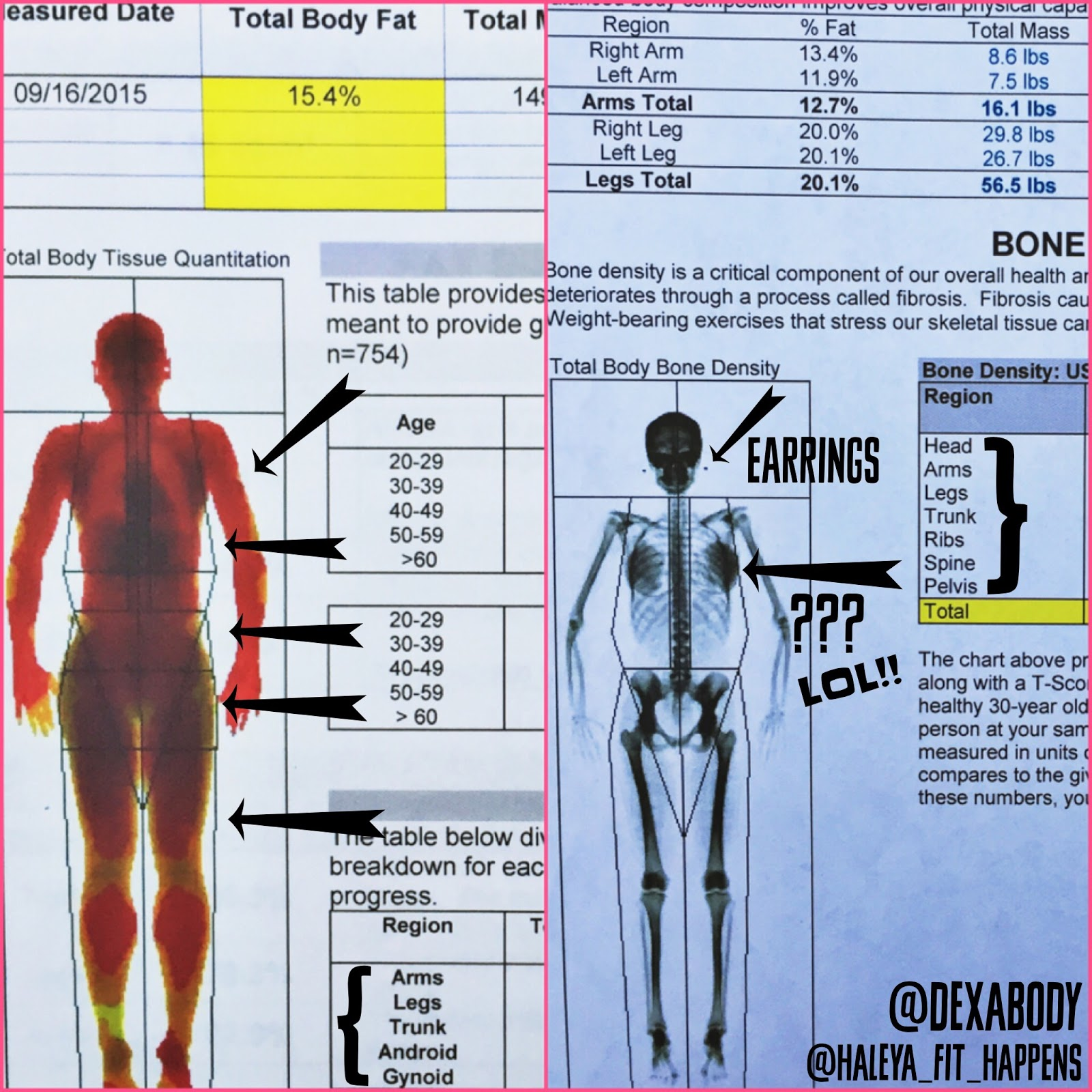 Bone Mineral Density Response to Caloric Restriction
