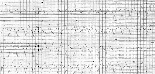 ECG of the Week - 1st December 2014