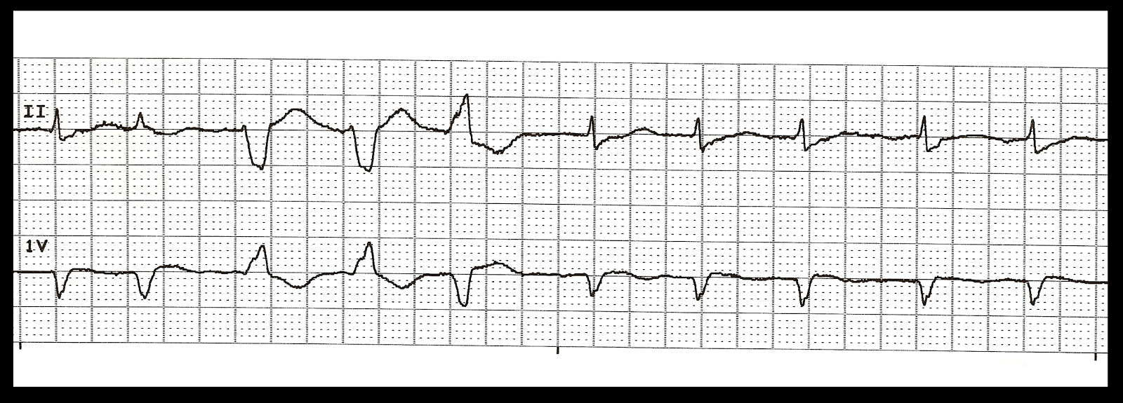 Float Nurse: EKG Rhythm Quiz 235