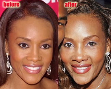 Vivica Fox Plastic Surgery Before And After Nose Job And