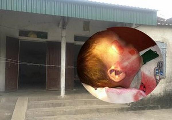 Vụ bé 15 tháng tuổi tử vong với nhiều vết thương lạ: Tài xế chở bé đến bệnh viện lên tiếng