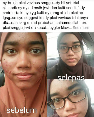 Image result for VEVIOUS ULTRA CORRECTION