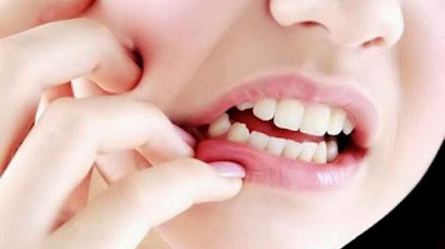Cara Mengobati Sakit Gigi dengan Mudah, Efektif dan Cepat Serta Tanpa Efek Samping