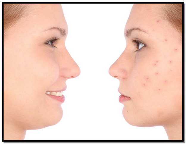 Best Nonprescription Acne Treatment For Sensitive Skin