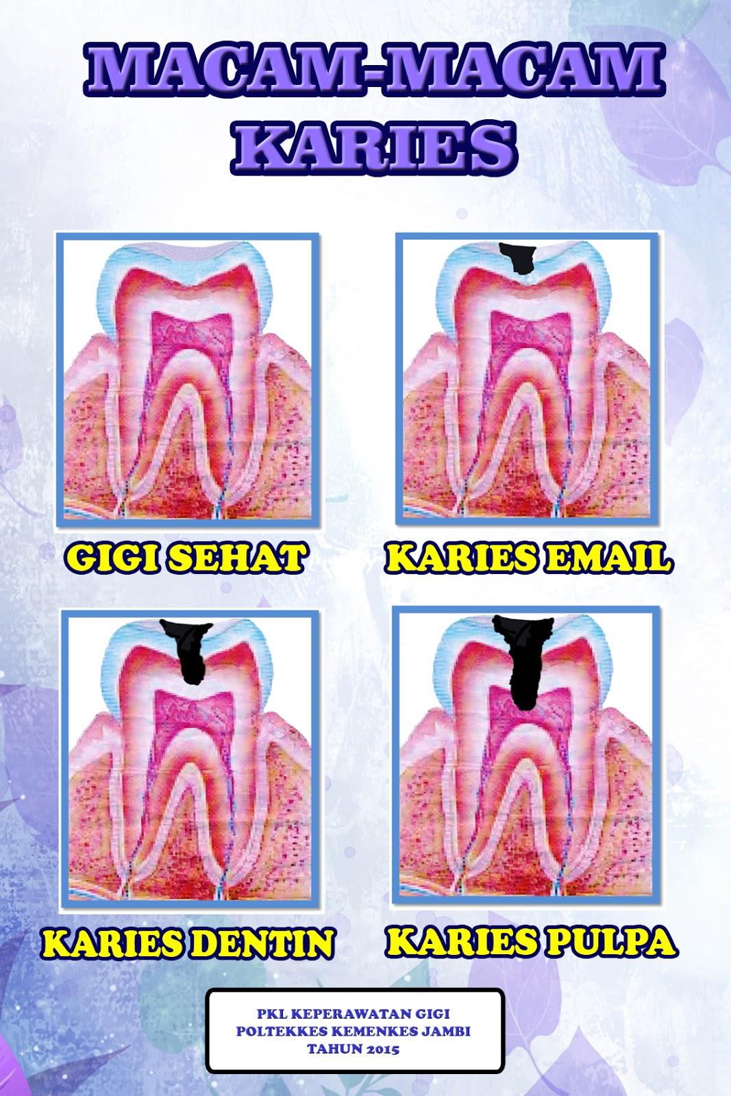 44+ Gambar Poster Kesehatan Gigi Dan Mulut, Tergokil!