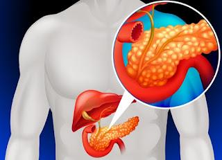 Pankreas Kanseri Belirtileri ve Tedavisi