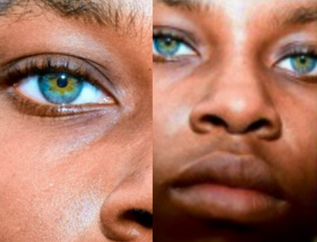 Nigerian Girl With Blue Green Hazel Eyes