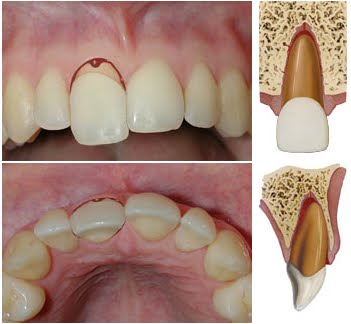 Management of a Severely Malpositioned Replanted Avulsed Tooth: A Case Report