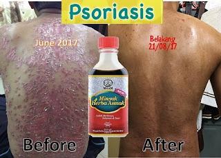 testimoni minyak asmak psoriasis