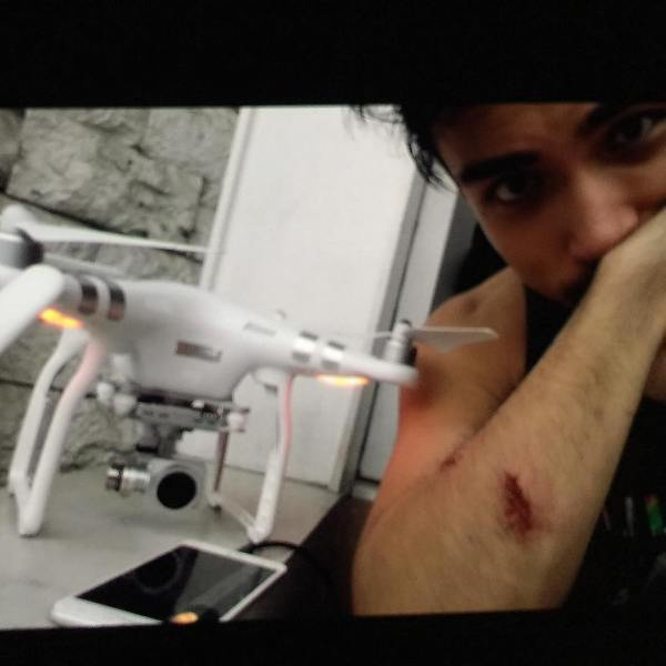 Xian Lim suffers scratches from drone filmmaking