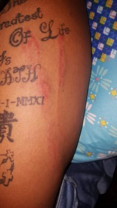 Lady narrates how she was allegedly brutalized by Police in Rivers state for tattooing her body