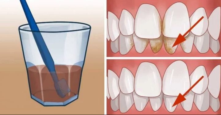 Get Rid Of The Plaque And Whiten Your Teeth At Home
