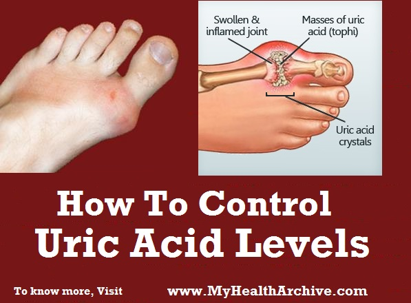 How to Reduce and Control Uric Acid Levels