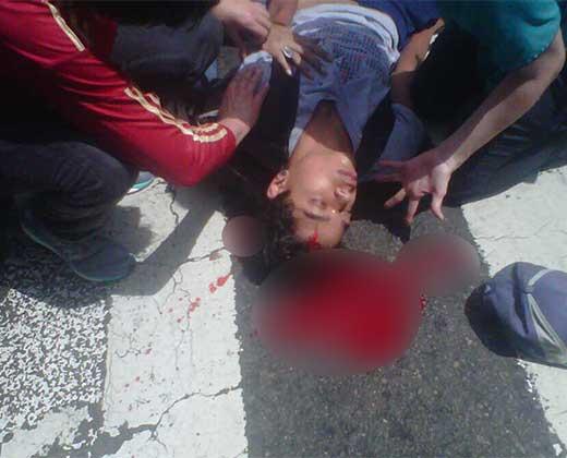 ¡VÍCTIMA DE LOS COLECTIVOS! Murió el joven que resultó herido en San Bernardino (+Fotos)
