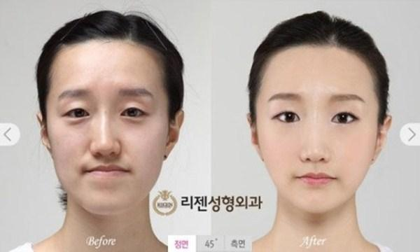 Ulzzang Makeup Before And After Cosmética Coreana...