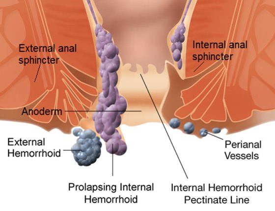 Hemorrhoids, Ethiopia, Amharic, Health, Tips, Mela, Useful Tips