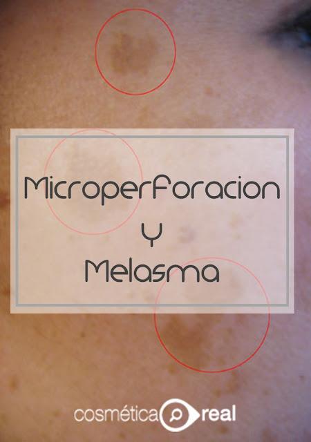 microperforacion y melasma