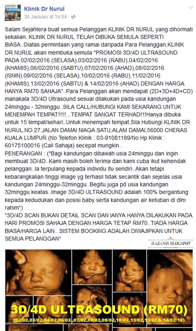PROMOSI 4D Ultrasound Murah Di Kuala Lumpur