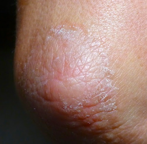 Really Dry Skin Hands