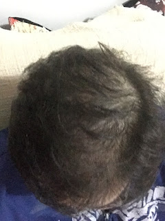 queda de cabelo excessiva