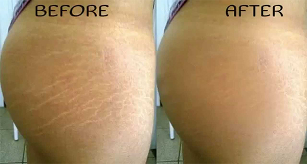 How to Remove Stretch Marks Naturally Within 6 Weeks - On