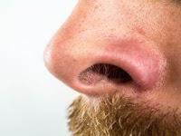 Bulu Hidung Anda Panjang, Ini Akibatnya Bila Sembarang Mencabut