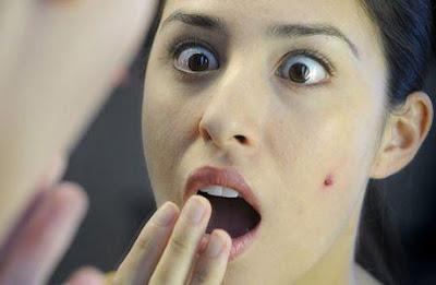 11 Tips Cara Menghilangkan Bekas Jerawat