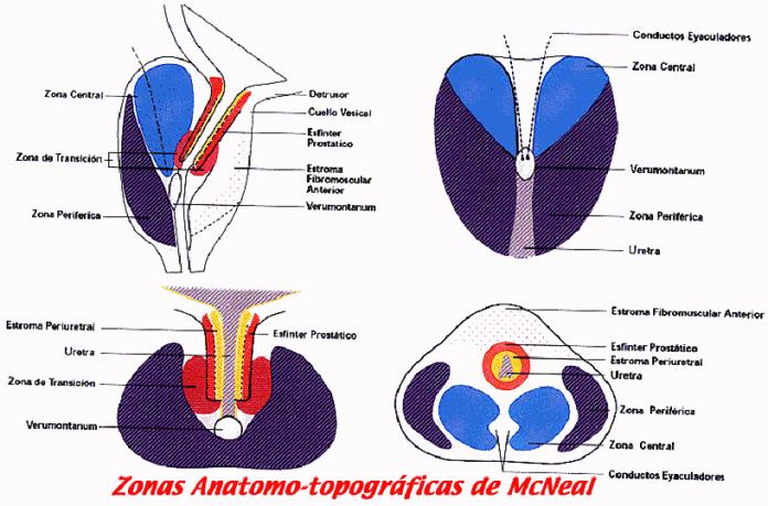 capsula fibrosa de la prostata