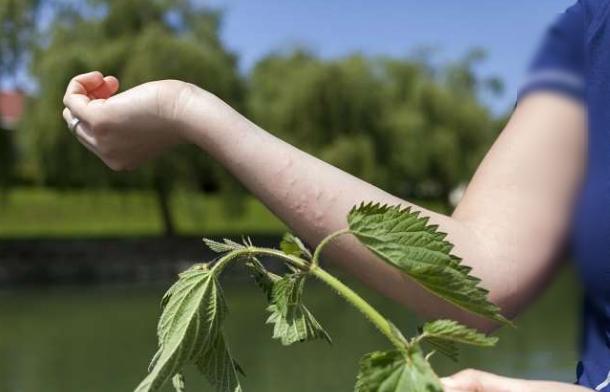 resep Obat Biduran Alami Dan Medis Agar Tidak Kambuh Lagi Dan Pantangan