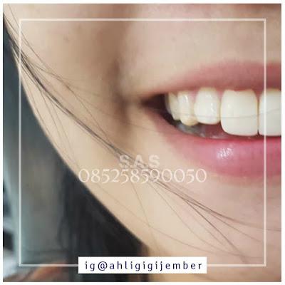 Foto gigi kelinci bunny smile gigi marmut jember pati jawa tengah ahli gigi pati foto senyum cantik gigi kelinci