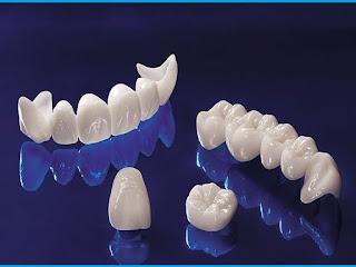 Bọc răng sứ quận 10 với bác sĩ Mai Xuân Ngọc