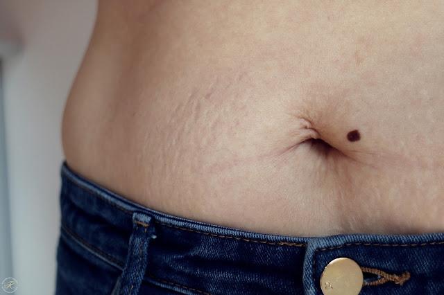 Kullakeks, Körper, Schwangerschaftsstreifen
