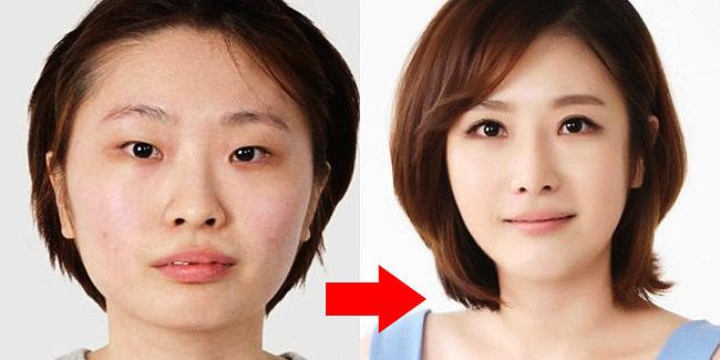 Hasil gambar untuk Ciri-Ciri Wajah Yang Pernah Operasi Plastik