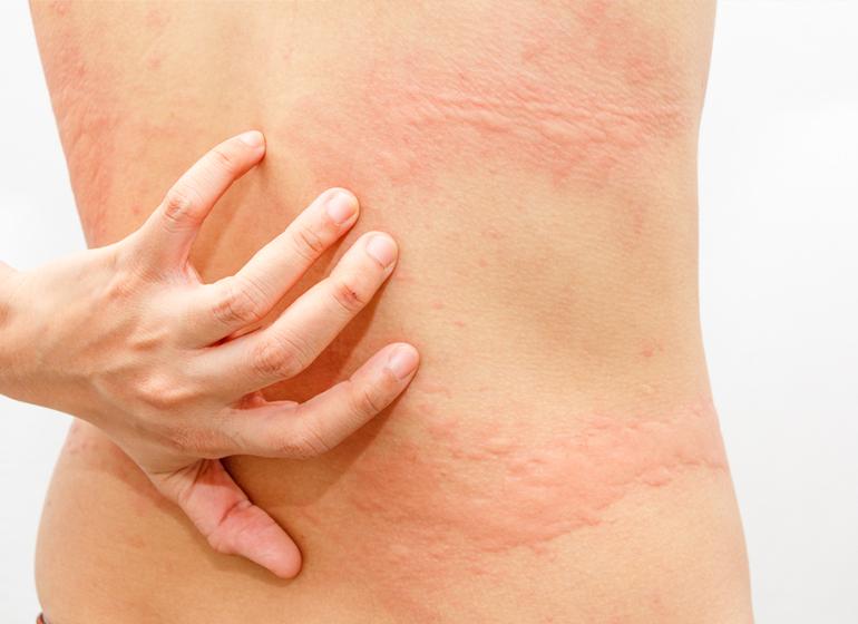 Cara Menghilangkan Gatal Alergi Pada Kulit