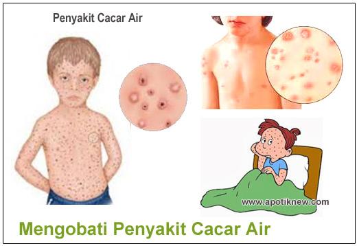 Mengobati Penyakit Cacar Air Sampai Sembuh Total