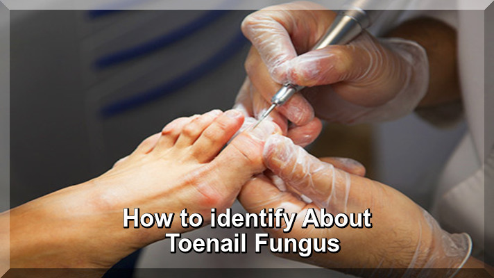 How to identify About Toenail Fungus