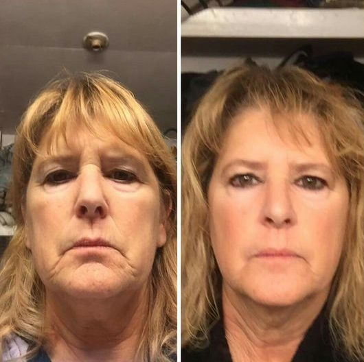 Best Face Exercises To Lose And Firm A Double Chin: Do Double Chin
