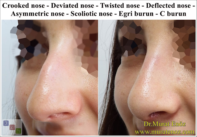 Female Nose Aesthetic Surgery - Nose Jobs For Women - Nose Reshaping for Women - Best Rhinoplasty For Women Istanbul - Female Rhinoplasty Istanbul - Nose Job Surgery for Women - Women's Rhinoplasty - Nose Aesthetic Surgery For Women - Female Rhinoplasty Surgery in Istanbul - Female Rhinoplasty Surgery in Turkey - Crooked nose - Deviated nose - Twisted nose - Deflected nose - Asymmetric nose - Scoliotic nose - Eğri burun - C burun - S-shaped crooked nose deformity -  Rhinoplasty Istanbul - Rhinoplasty in Istanbul - Rhinoplasty Turkey - Rhinoplasty in Turkey – Rhinoplasty doctor in Istanbul – ENT doctor in Istanbul - Nose Job in Istanbul - Before and after rhinoplasty photo