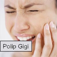 Cara Menghilangkan Polip Pada Gigi Berlubang