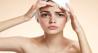 Definitions of How to Clear Acne Naturally