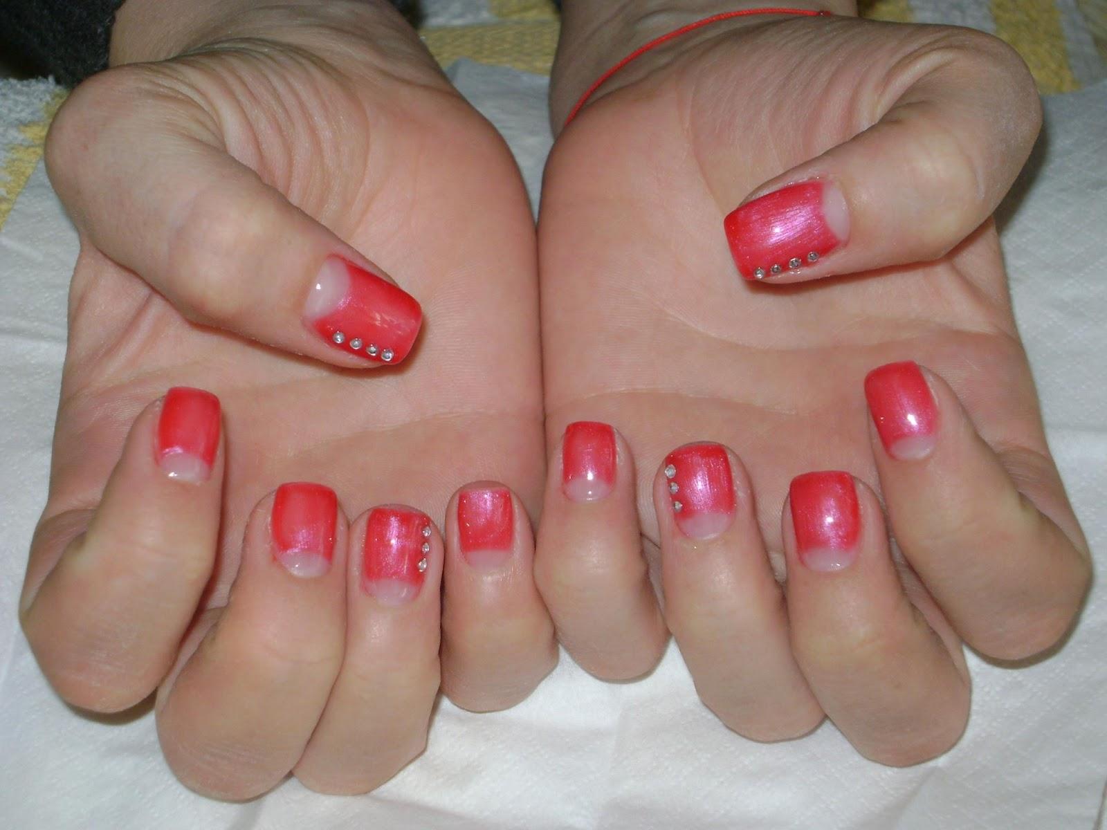 Onicomicoza – infecția fungică a unghiei. Tratament și remedii naturiste