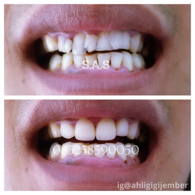 Ahli perbaikan gihi berlubang ahli gigi jember ahli tambal gigi ahli permak gigi