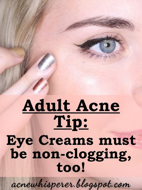 Eye creams have to be non-pore-clogging.