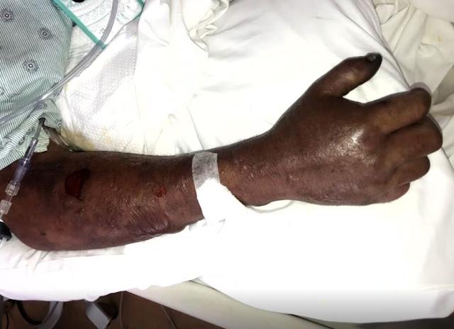 Πήγε για ψάρεμα, μολύνθηκε με σαρκοβόρο βακτήριο και τώρα παλεύει για τη ζωή του